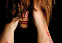 women with self injury scars